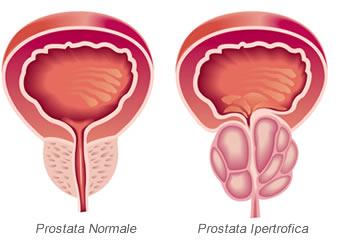 Cialis e la prostata