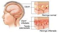 salute Meningite1